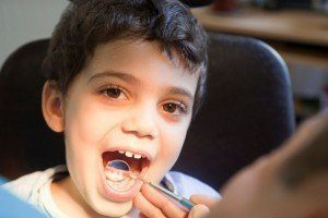 Young male patient getting his teeth examined as part of the preventive dentistry care at Advanced Dental Group.