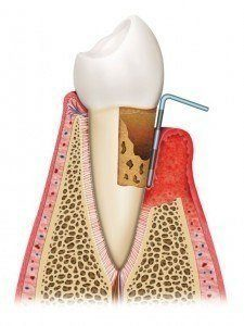 Picture of Gum Disease Therapy
