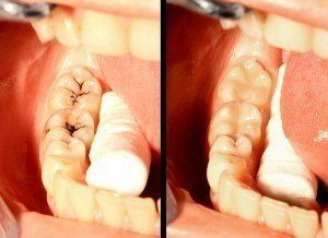 Image of teeth before and after white teeth fillings have been inserted.