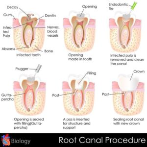 Explanatory chart of a root canal procedure.
