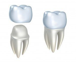 Picture of dental crown