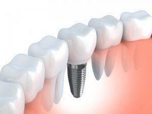 Picture of dental implants like the ones provided by Advanced Dental Group.