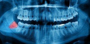 X-ray image of wisdom tooth that will have to be removed with our tooth extractions services.